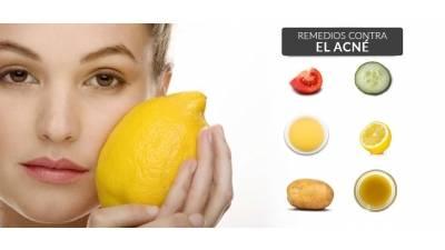 Elimina el acné de forma natural