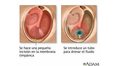 Drenaje en el oído