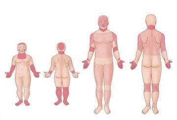 Pliegues de la dermatitis atópica