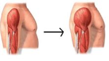 Sarcodyn crecimiento de masa muscular