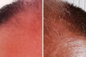 antes y después de neogenic