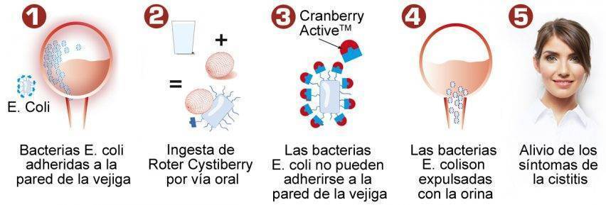 Roter Cystiberry para la cistitis