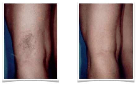 Arañas vasculares antes y después